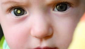Světový týden zvyšování povědomí o retinoblastomu